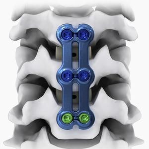 頸椎関節固定プレート