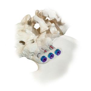 仙腸骨骨接合システム