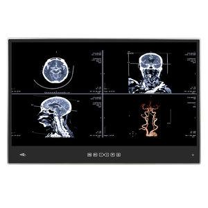 Intel® Core i7医療用PCパネル