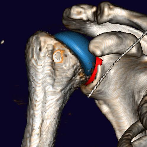 手術前プランニング用ソフト / 3Dシミュレーション / 肩の手術用