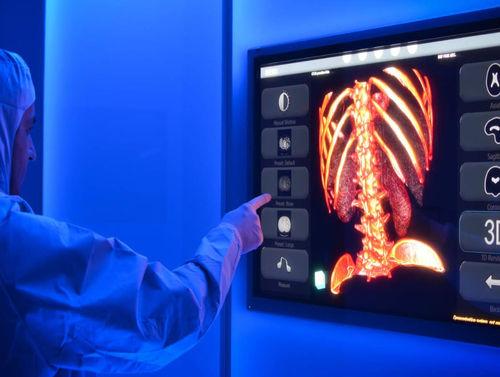 診断管理システム / 3D ヴィジュアリゼーション / 医療画像 / 手術室用