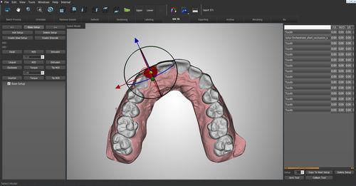 歯列矯正ソフト