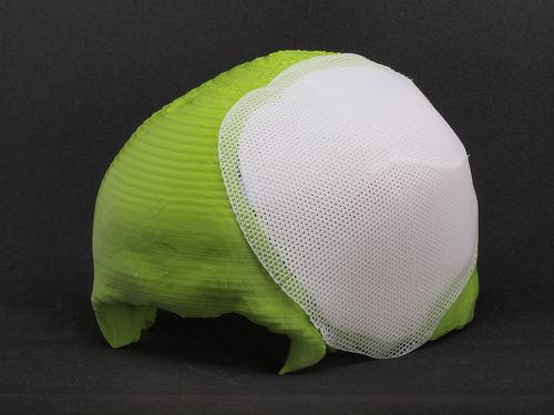 吸収性頭蓋インプラント
