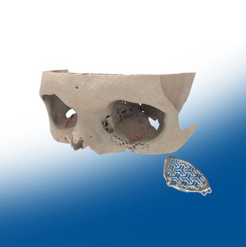 オーダーメイド眼窩周囲インプラント