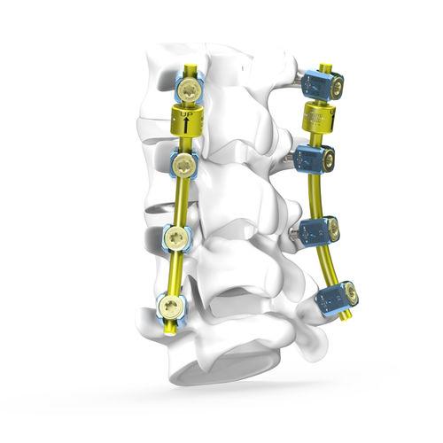 胸腰仙骨接合システム