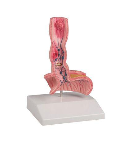 食道解剖模型