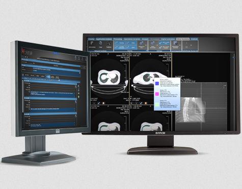 データ管理ソフト / ヴィジュアリゼーション用 / 放射線治療用