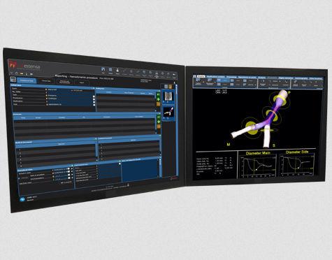 分析ソフト / ヴィジュアリゼーション用 / 血管造影検査