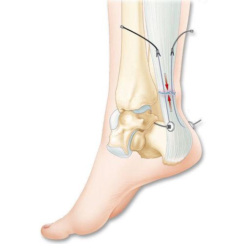 アキレス腱靭帯プロテ-ゼ