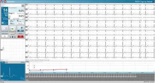 心呼吸ストレステスト ステーション用ソフト