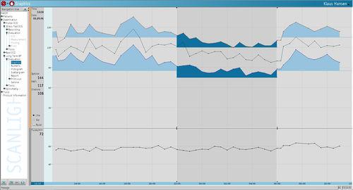 動脈血圧モニター用ソフト
