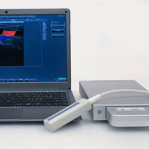 携帯型超音波装置