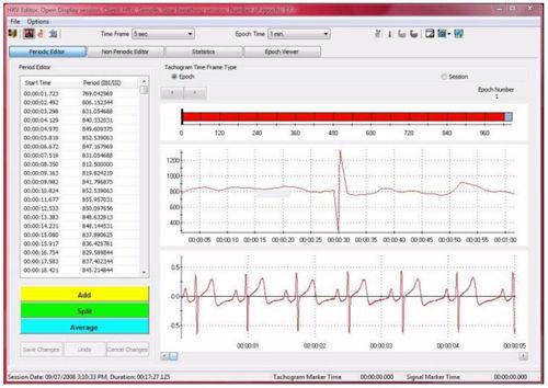 分析ソフトウェアモジュール / 電気生理学