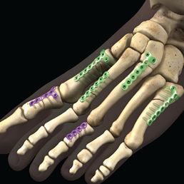 中足指節関節圧迫プレート