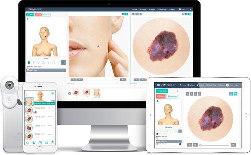 イメージ分析ソフト / データ管理 / 患者データ管理用 / 患者のレジュメ管理用
