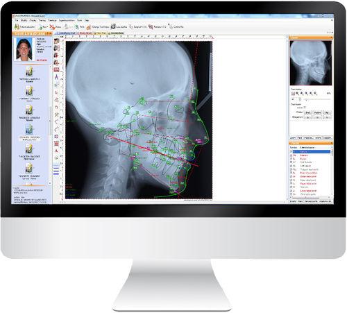 胎児頭蓋切開分析ソフト / 管理用 / 診断 / 歯科矯正用