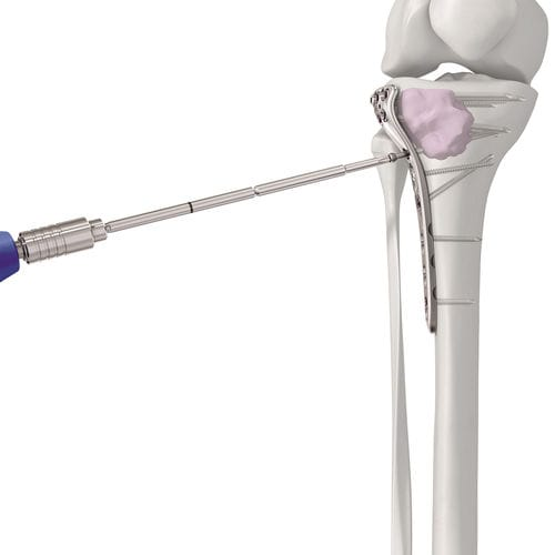 整形外科手術骨セメント