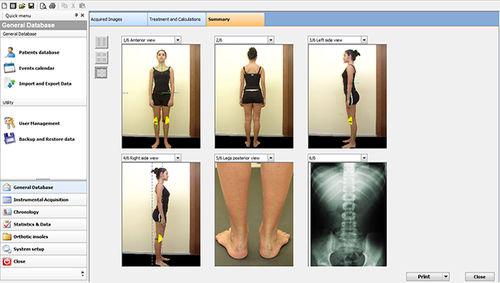 分析ソフト / 測定用 / 姿勢図検査用