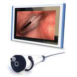 ビデオ喉頭鏡 / 小児