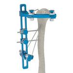 上腕骨外部固定システム