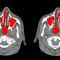 分析ソフト / 3D ヴィジュアリゼーション / 解剖学 / 耳鼻咽喉科