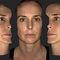 メラニン レベル分析皮膚分析システム