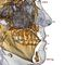胎児頭蓋切開分析ソフトウェアモジュール / 3Dシミュレーション / デンタルイメージング用