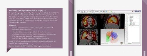 Pulmonary Lobe segmentation prior to surgery