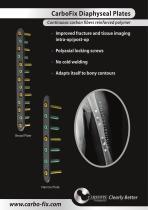 CarboFix Diaphyseal Plates - 1