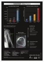 CarboFix Humerus Nails - 2