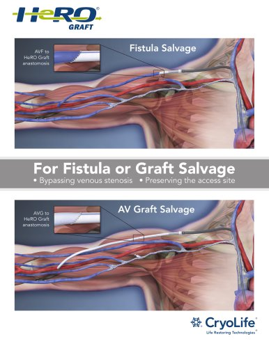For Fistula or Graft Salvage Bypassing venous stenosis