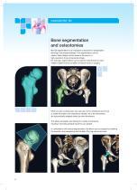 mediCAD HIP 3D - 6