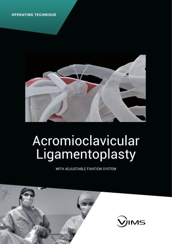 OPERATING TECHNIQUE - ACROMIOCLAVICULAR LIGAMENTOPLASTY