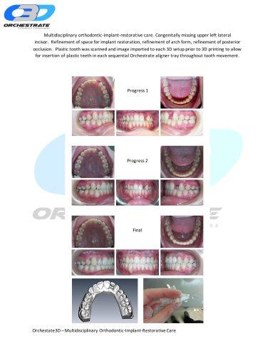 Multidisciplinary Orthodontic Implant Restorative care