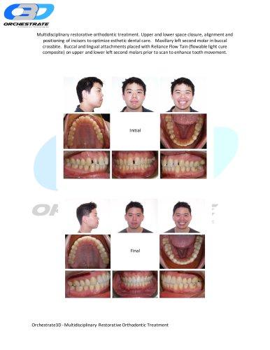 Multidisciplinary Restorative Orthodontic Treatment