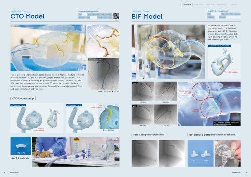 HEARTROID _CORONARY_CTO  BIF Model