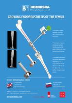 GROWING ENDOPROSTHESIS OF THE FEMUR - 1