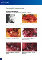 Hip Hemiarthroplasty – type CSB - 12