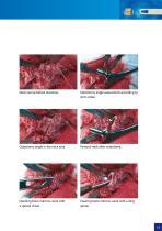 Hip Hemiarthroplasty – type CSB - 13