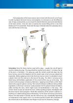 Hip Hemiarthroplasty – type CSB - 9