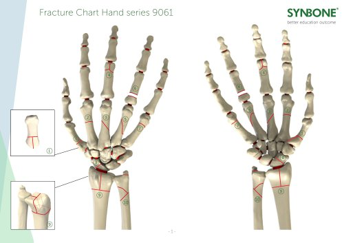 Fracture Charts Hand models 9061 series