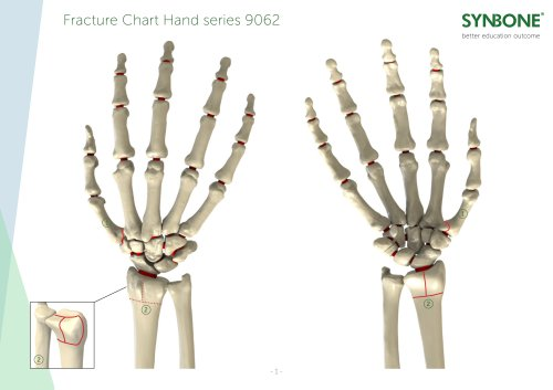Fracture Charts Hand models 9062 series