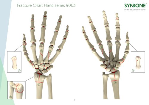 Fracture Charts Hand models 9063 series