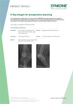 X-Ray Images for preoperative planning