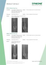 X-Ray Images for preoperative planning - 2