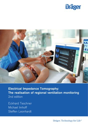 Electrical Impedance Tomography: The realisation of regional ventilation monitoring