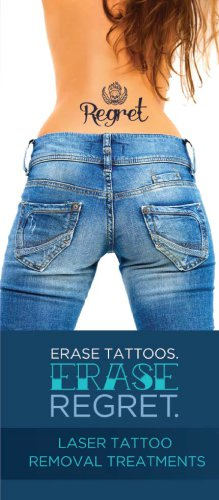 TriLase-Tattoo-Removal