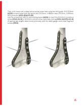 DHL - Distal Humeral Locking Plates - 13