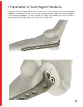 OHL - Olecranon Hook Locking Plate - 13