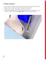 PHL - Proximal Humeral Locking Plate - 12
